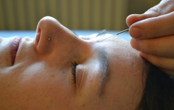 Community Acupuncture Abingdon